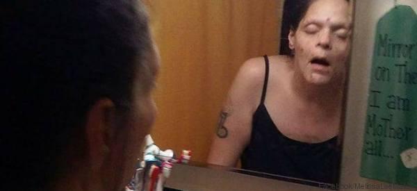 So sah die Frau noch vor 1,5 Jahren aus - dann hörte sie auf, Heroin zu konsumieren