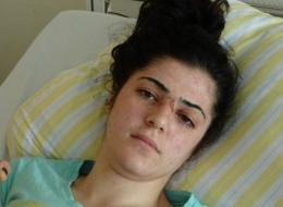 زوجها حاول خنقها بيديه بسبب الغيرة.. شابة سورية تنجو من الموت في ألمانيا