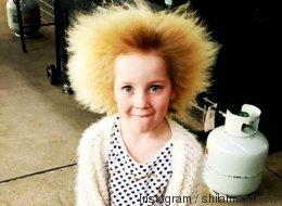 Als das Mädchen drei Monate alt war, begannen seine Haare wild zu wachsen - der Arzt diagnostizierte ein seltenes Syndrom