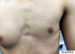 한쪽 가슴만 크게 자란 남자가 수술을 받았다