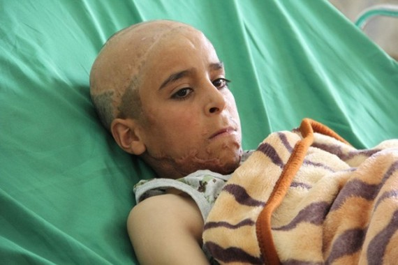 Saudi coalition attacks kill many children in Yemen