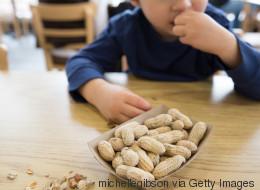 Erstaunlicher Durchbruch: Forscher finden Heilmittel gegen Erdnussallergie