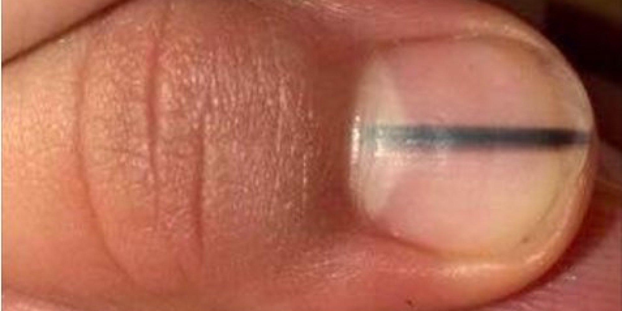 wenn ihr bei jemandem diesen dunklen streifen auf dem nagel seht schickt ihn besser zum arzt. Black Bedroom Furniture Sets. Home Design Ideas