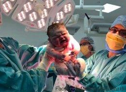 Dieses Baby ist schon kurz nach seiner Geburt berühmt - wer das Foto sieht, erkennt, warum