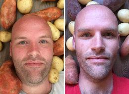 تناول البطاطا سنة كاملة شاهد ما حدث لوزنه.. قصة رجل أسترالي اتبع حِمية غريبة