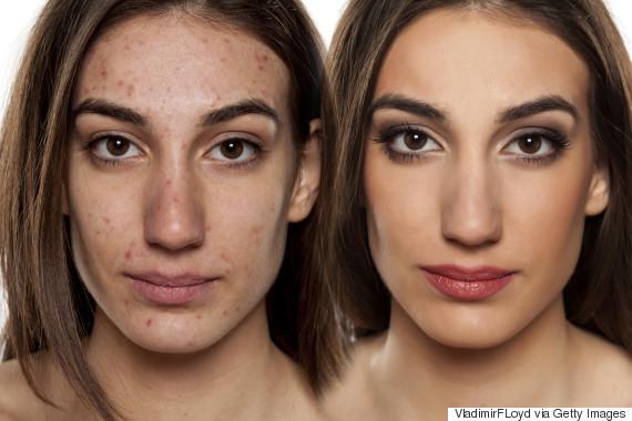 vladimirfloyd acne