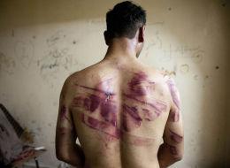 عرّونا من ملابسنا وحوّلوا أجسادنا لخريطة تعذيب.. عام في سجونك يا مصر