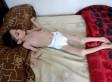 ΟΗΕ: Οι πολιορκημένοι Σύριοι τρώνε σκουπίδια και λιποθυμούν από την πείνα