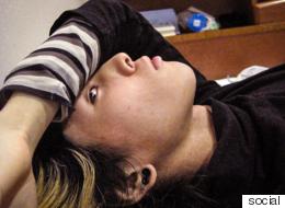 التضحية ببعض الجسد.. حالات التشويه المتعمد للهروب من واجب أو الحصول على العطف