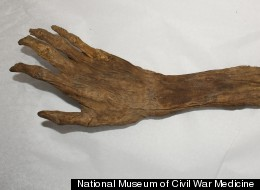 Civil War Arm
