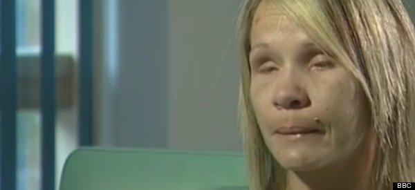 Eye Gouge Victim Tina Nash Says Cornwall Man Shane Jenkins ...