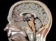 Genes Tied To IQ, Brain Size In UCLA ENIGMA Study