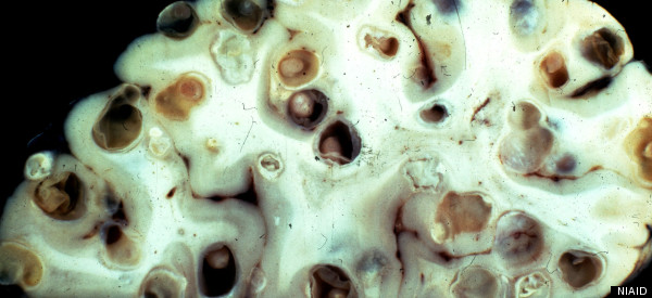 Brain Tapeworms Cause Neurocysticercosis, A Creepily ...