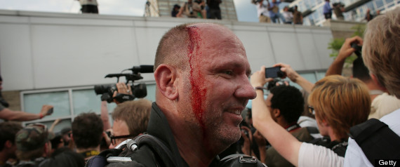 Getty Journalist Beaten By Police