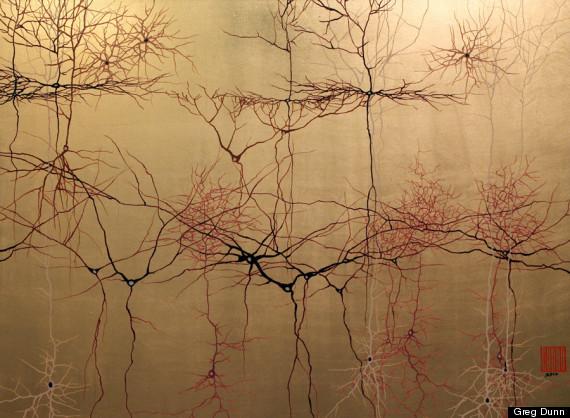 5_gold cortex