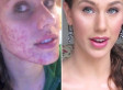 Antibiotic facial acne cultures