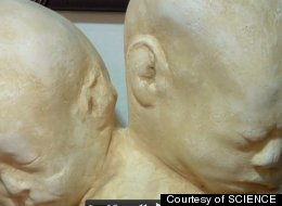 Twoheaded Baby Death Mask