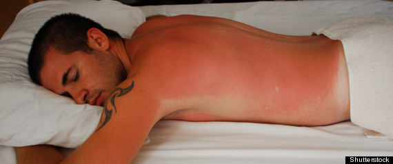 Man laying in bed with large sunburn across his back