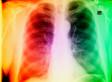 Lungs Found On Sidewalk In South Los Angeles, Calif. (UPDATE)