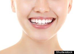 ¡Enséñame tus dientes! Consejos para una sonrisa hermosa