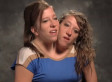 Abby Hensel, Brittany Hensel Reality Show: Conjoined Twins Star In TLC's 'Abby And Brittany' (VIDEO)