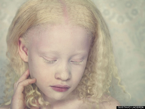 Hot Albino Women http://www.huffingtonpost.co.uk/2012/08/15/gustavo-lacerdas-haunting-photograph-of-albinos-pictures_n_1778173.html