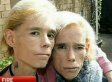 Twins Clare And Rachel Wallmeyer Dead: Australian Sisters With Anorexia Die In House Fire (VIDEO)