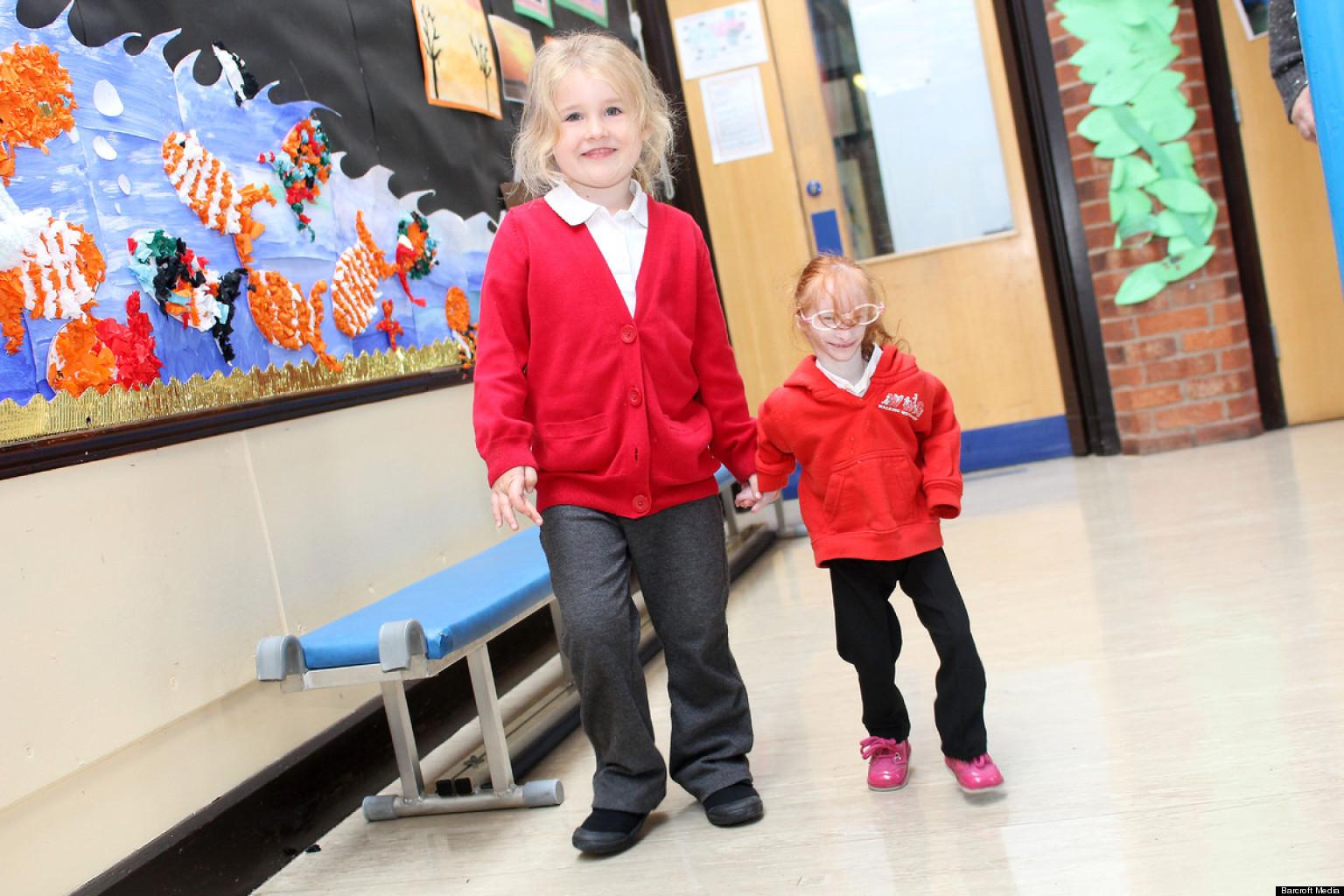 Charlotte Garside, Girl 5, Born With Primordial Dwarfism ...