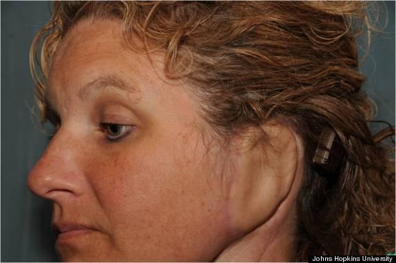 ear reconstruction surgery
