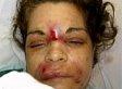 Edna Viviana Ayala, Improperly Licensed Beautician, Gave Isabel Gonzalez Face-Deforming Injections: Cops