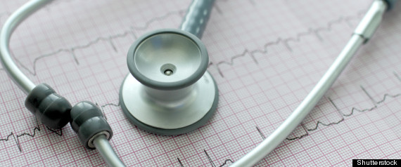 Arrhythmia Risks