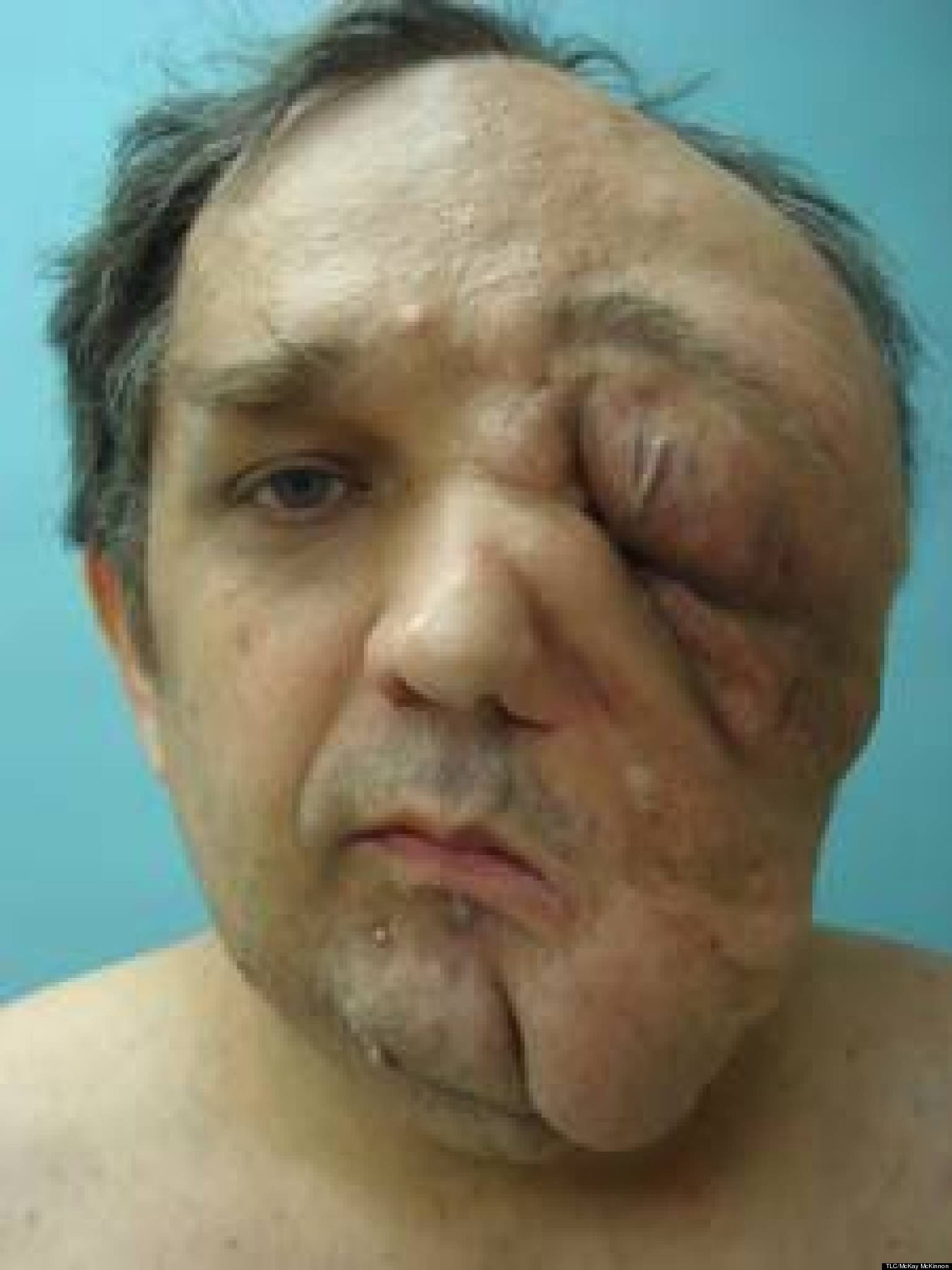 Man with giant facial tumor