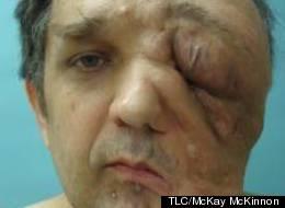 Man Discusses 'My Giant Tumor'