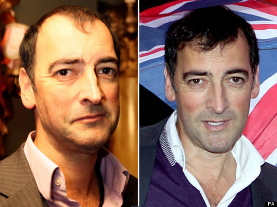alistair mcgowan hair transplant