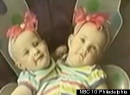 Conjoined Twins Separated At 8 Months