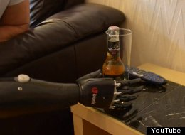 World's Most Amazing Prosthetic Arm