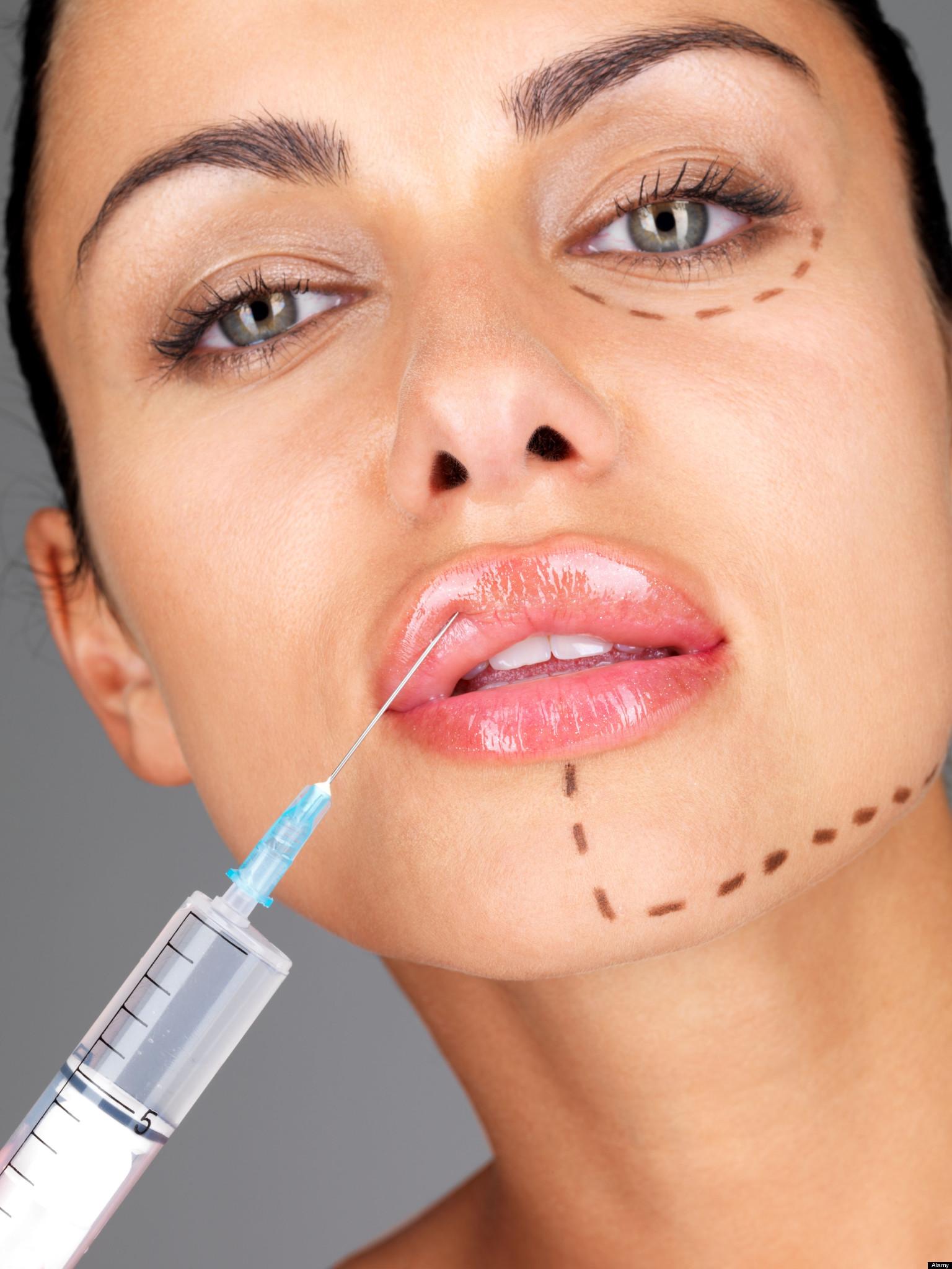 Пластика уздечки верхней губы: зачем нужно подрезание 66