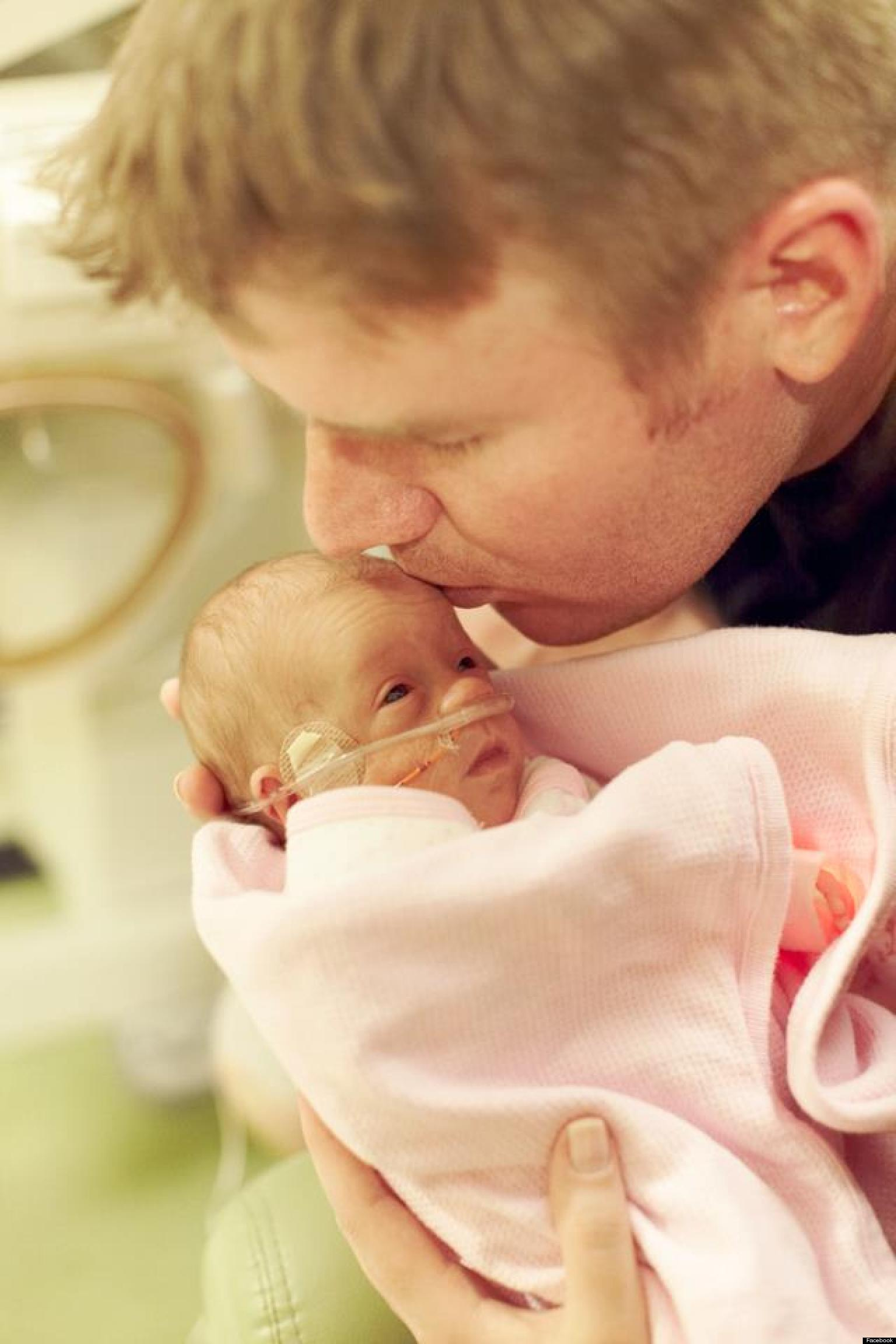 Ruby Love Lambright, Premature Baby Born At 1.6 Pounds ...