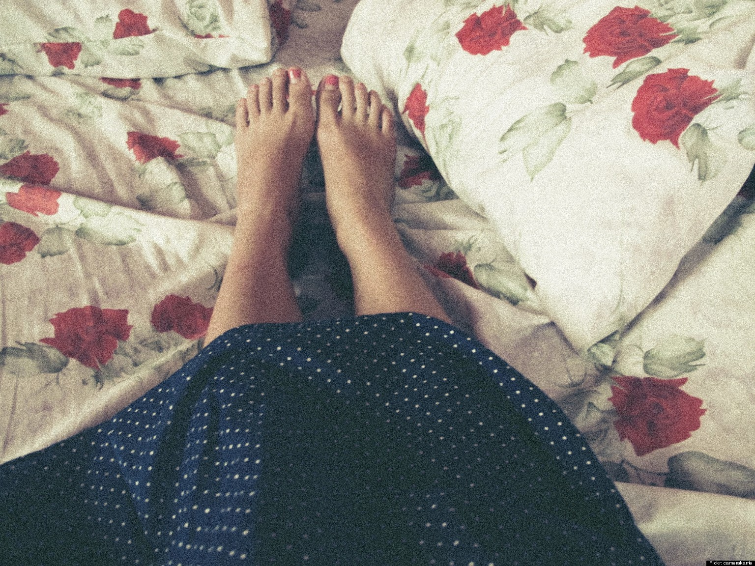 Restless Leg Syndrome: Still a Mystery, and Linked to Other Health ...