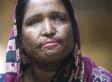 Nurbanu, Bangladeshi Woman, Forced To Return To Husband After Acid Attack (WARNING: DISTURBING IMAGES)