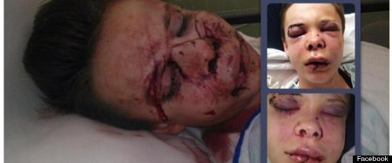 Hate Crime: Lesbian viciously attacked by girlfriend's brother (GRAPHIC PHOTO)