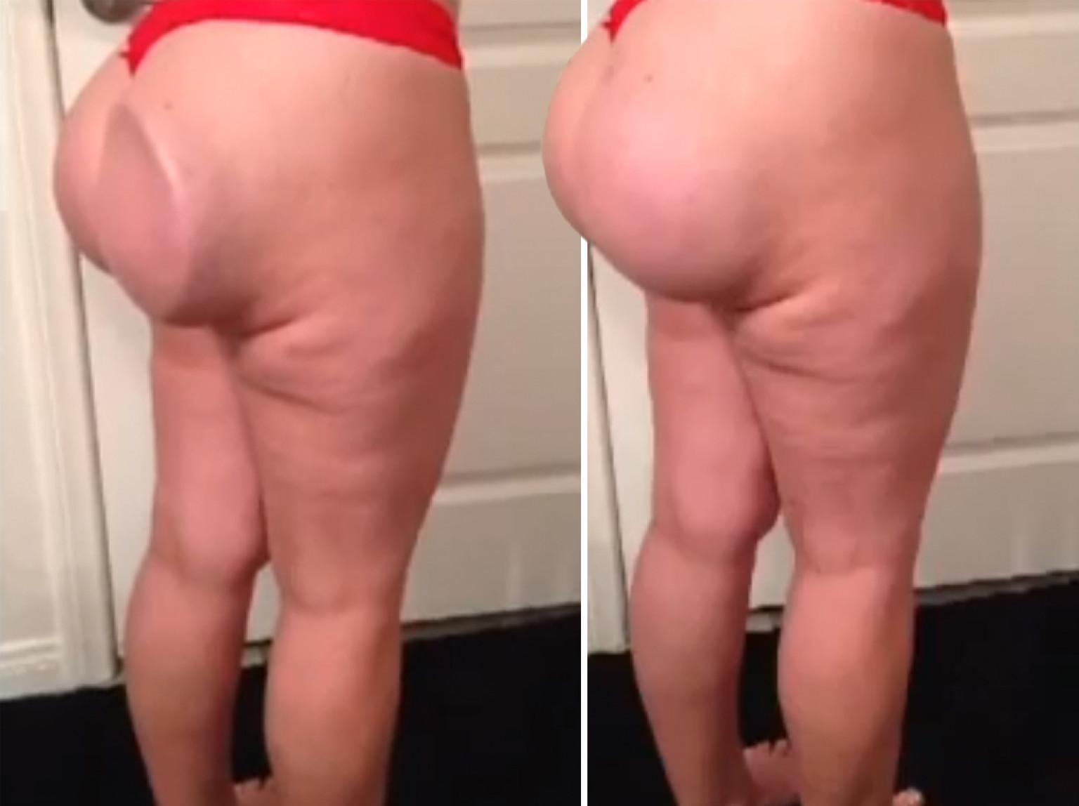 Pics Of Butt Implants 55