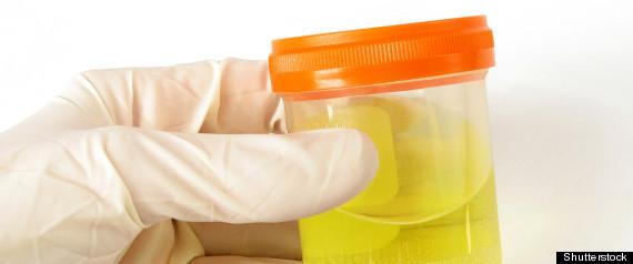 Urine Cellules Souches