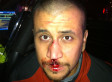 George Zimmerman Bloody Face: Defense Team Releases Image From Night Of Shooting (PHOTO)