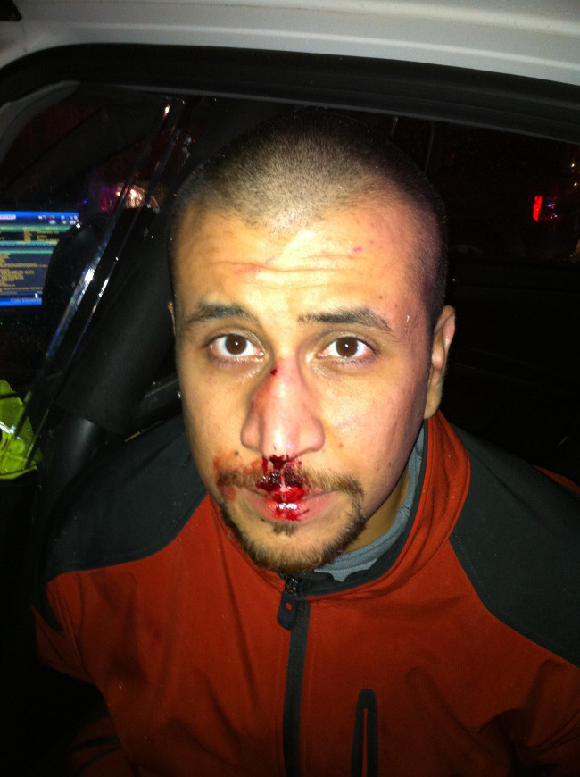 george zimmerman bloody face photo
