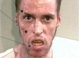 Horrors Of Methamphetamines By Rehabs.com Shows Faces Ravaged By Alleged Drug Abuse (PHOTOS)