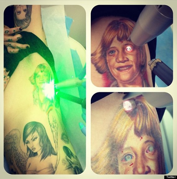 Von D shared a photo of her tattoo removal process on Twitter. Story