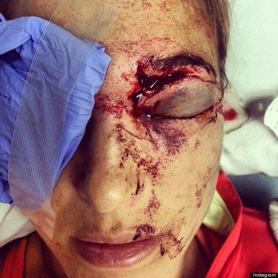 golf shot hits wife eye bode miller morgan beck