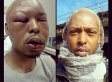 Kenni Shaw, Gay Baltimore Man, Believes Christmas Day Attack Was A Hate Crime