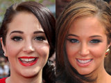 Celeb Teeth: Before & After